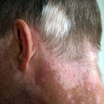 Vitiligo-affecting-hair-and-neck