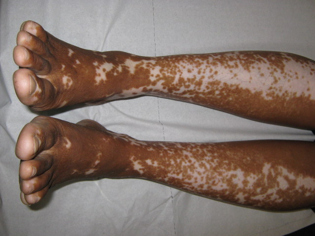 Image result for leukoderma in men india