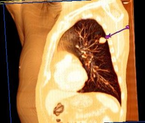 Rendering of the lung