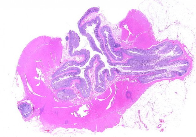 Whole slide of a transverse section of left colon with diverticulosis