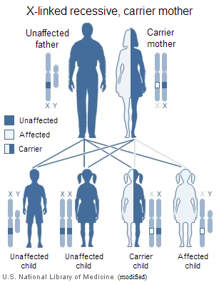 X-linked Recessive AIS