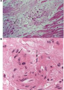 acute-rheumatic-myocarditis