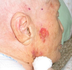 Basal-cell carcinoma