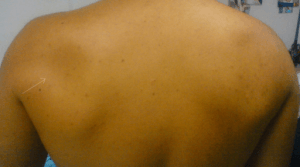 both shoulders from the back