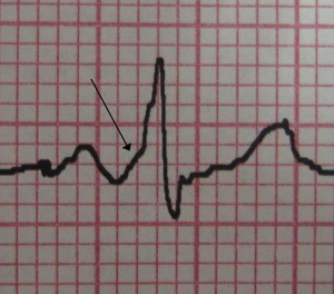 characteristic delta wave seen in a patient with WPW