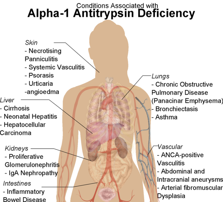 conditions associated with Alpha-1 Antitrypsin Deficiency