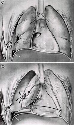 development of a tension pneumothorax