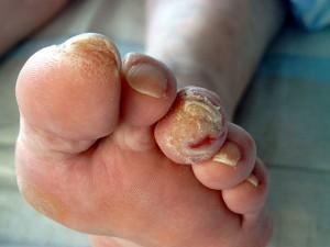 diabetischen foot syndrom