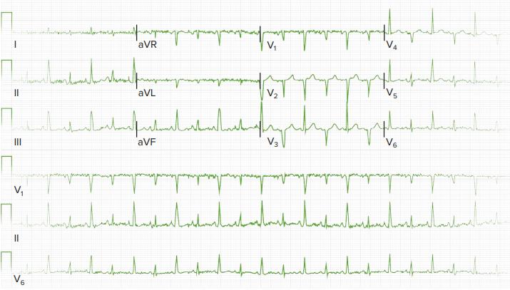 electrocardiagram-of-acute-pericarditis