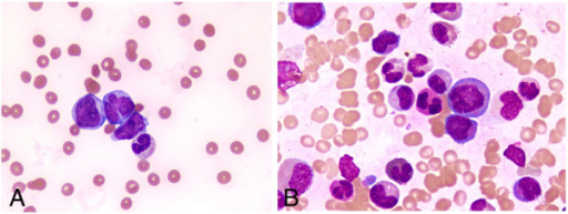 fanconi-anemia-blood-smear