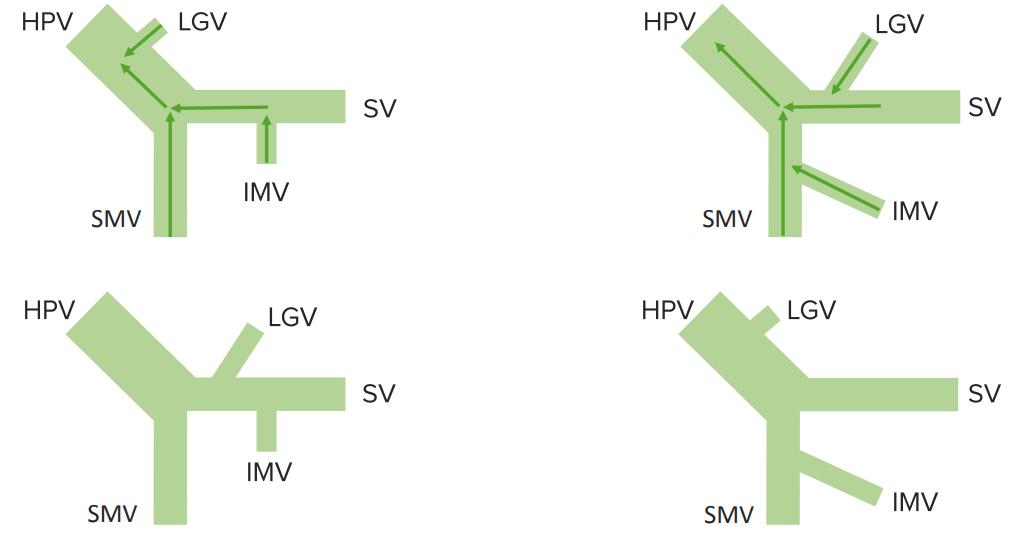 formation-variation