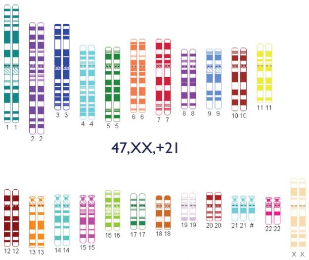 genetic pattern of trisomy 21