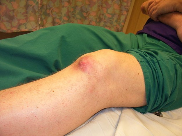 Gouty tophi on knee of middle aged male nurse