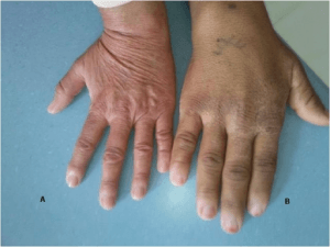 hand of a person with acromegaly (B) and a healthy woman (A)