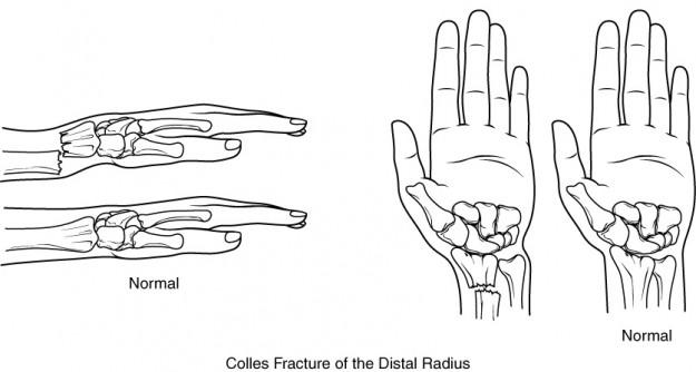 Humerus radius fractures