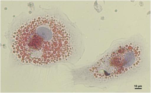 human-monocyte