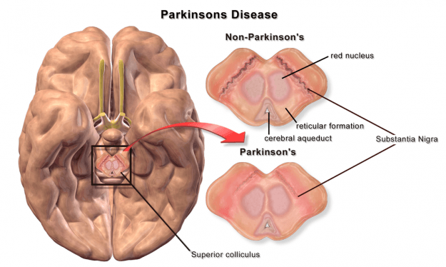 image-brain-Parkinsons-Disease