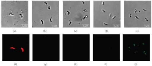 immune fluorescence stain