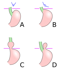 Schematic diagram of different types of hiatus hernia