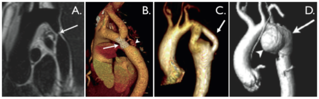 Coarctation-of-the-aorta-cardiac-images