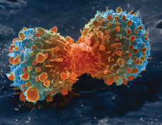 lung cancer cell during cell division