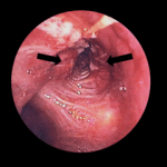 Lung cancer in the left bronchus