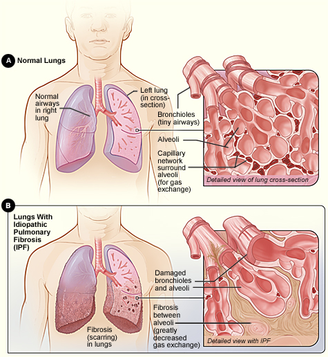 lungs with IPF