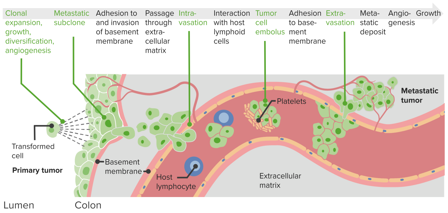 malignant-neoplasm