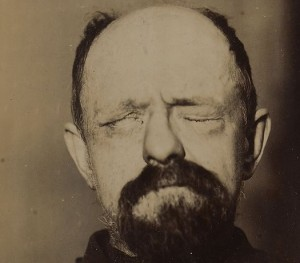 picture of a man suffering from right facial palsy