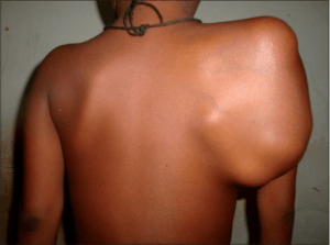 massive scapular swelling