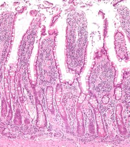 micrograph of small intestinal mucosa