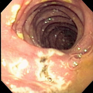 multiple small ulcers located in the distal duodenum