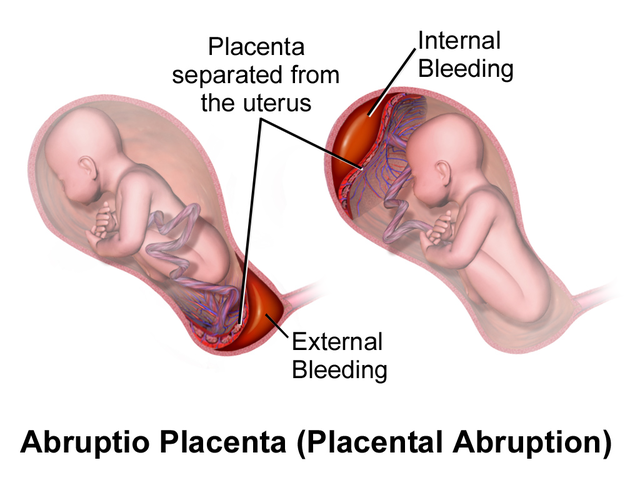 placenta detachment