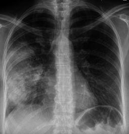 pneumonia in the thoracic X-rays