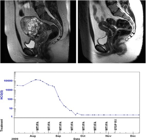 Molar Pregnancy (Hydatidiform Moles) And Choriocarcinoma