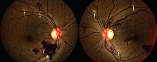 retinal-hemorrhage