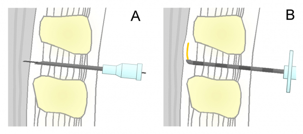 schematic representation of the spinal (A) and epidural (B) in comparison. Shown is a median section in the sagittal plane ( height mean lumbar spine )