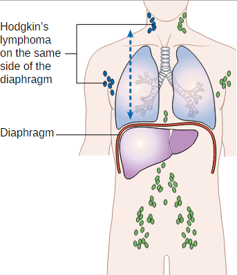 Hodgkin's Lymphoma (Hodgkin's Disease) — Stages and