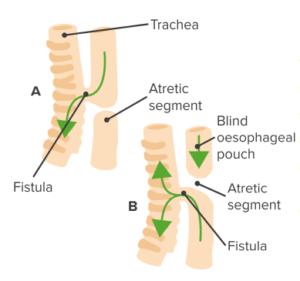 tracheo-esophageal-fistula