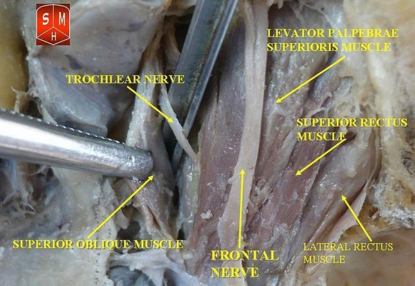 trochlear and frontal nerves