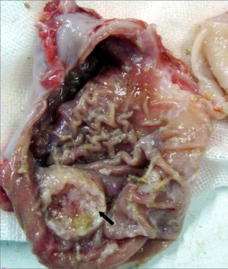 """Image: """"Ulcerating Gastric Carcinoma"""" by Kuebi. License: CC BY-SA 2.0"""