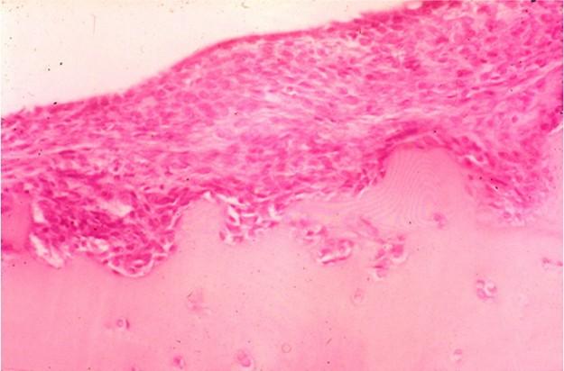 united cell structure intrude rheumatoide arthritis