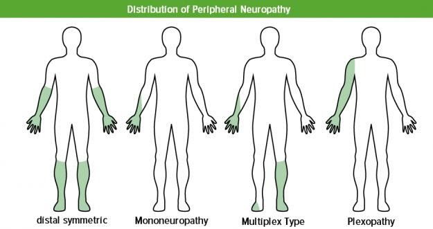 verteilungsmuster-neuropathie