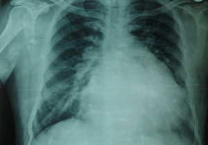 x-ray-lung
